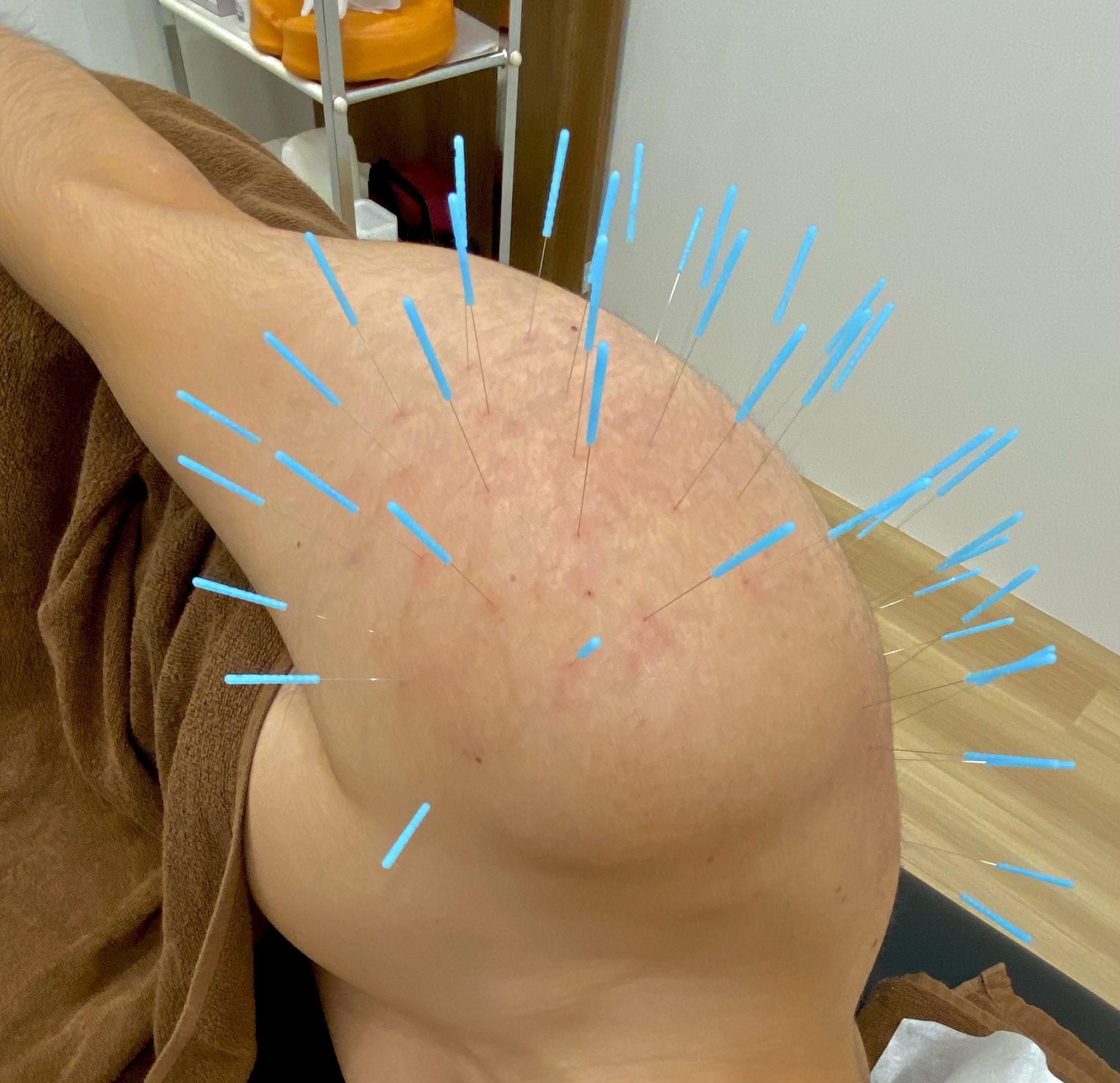 鍼灸症例報告【五十肩】